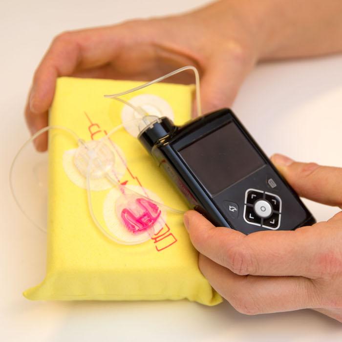 Insulineinstellungen, Insulinpumpentherapie
